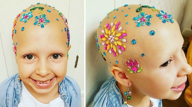 7-year-old girl with alopecia makes her baldness beautiful