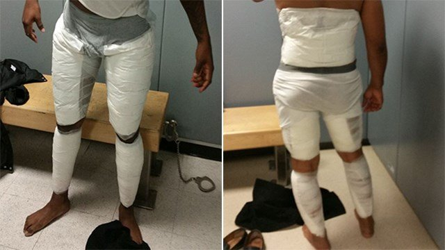 Border Patrol officers at JFK airport captured two more smugglers with packages of cocaine strapped to their legs. (Source: Customs and Border Patrol)