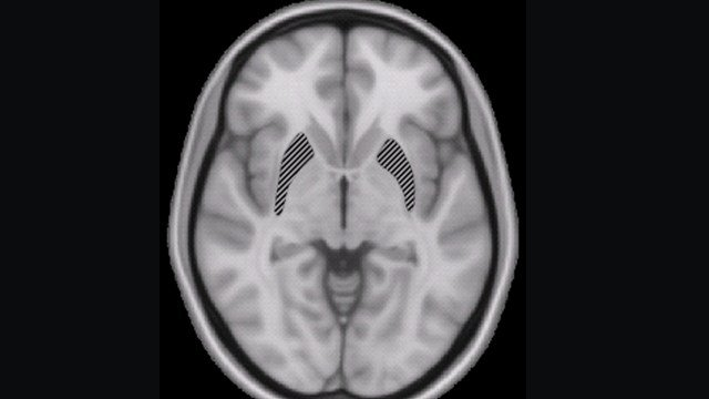 Putamen. Part of basal ganglia, which is part of the brain / central nervous system. (Photo: Wiki)