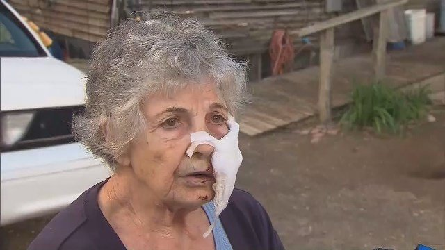 80-year-old woman attacked, mauled by rabid bobcat in garden
