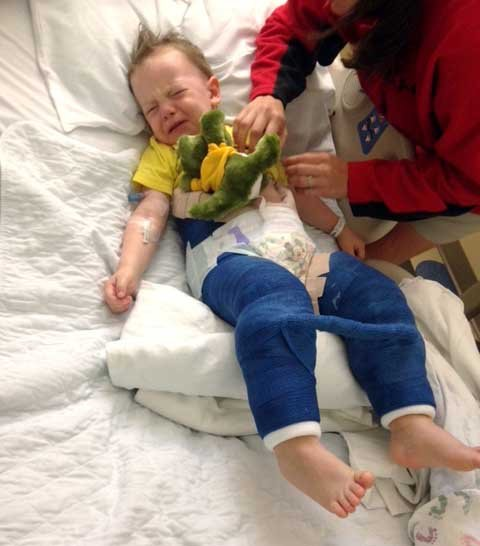 Colton Hill, 3, is in a cast from the waist down for an injury suffered while jumping at a trampoline park, his family said Tuesday, July 11. (Courtesy of the Hill Family via AP)