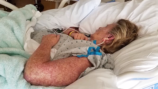 Tamela Wilson, 58, is the first person in Missouri to test positive for the tick-borne illness known as the Bourbon Virus. (Source: Family Photo via KMOV.com)