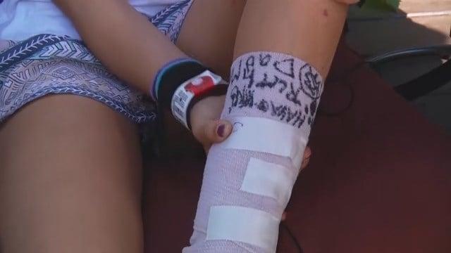 Fish chews on 11-year-old girl's foot, causes bone-deep cuts