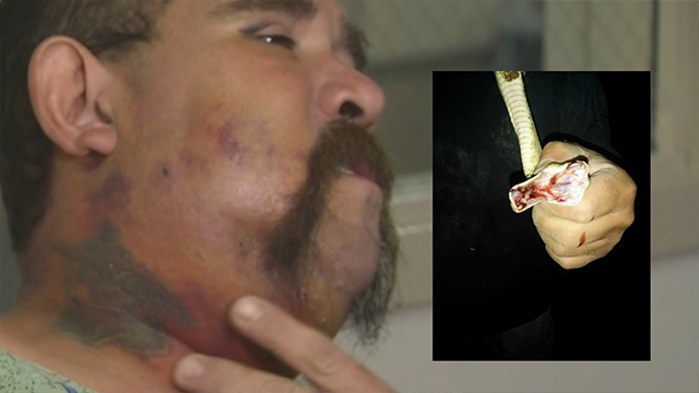 Arizona man played with a rattlesnake, got bit in the face