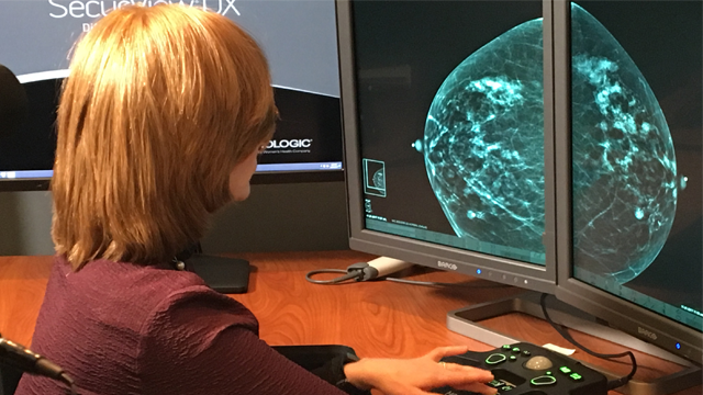 Dr. Tova Koenigsberg at The Montefiore Einstein Center for Cancer Care in New York shows an example of a traditional mammogram scan. (Montefiore Health System via AP)