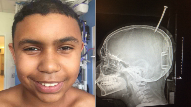 A six-inch screw pierced a boy's skull, right between the brain's two hemispheres. (Photo Credit: Dr. Alan Cohen)