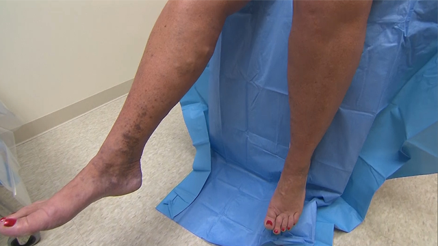 Why varicose veins are more than skin deep
