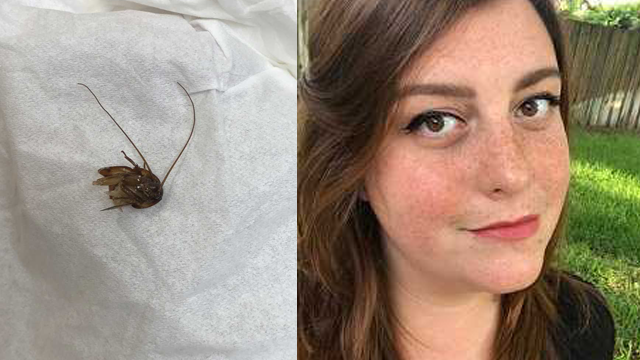 After trying to extract a cockroach that had lodged in her ear, Katie Holley had to seek medical attention three times before the whole cockroach was removed. (Katie Holley via AP)