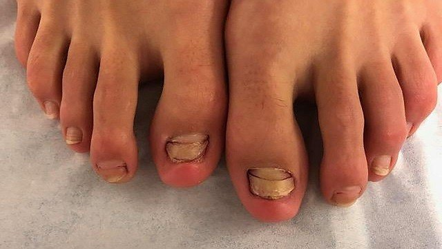 'Fish pedicure' caused one woman's toenails to stop growing