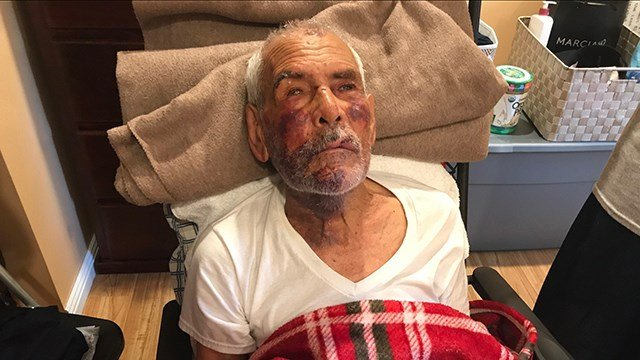 LA woman held for July 4 beating of elderly man