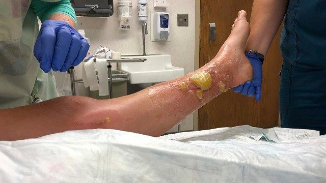 This July 2018 photo shows Charlotte Murphy's leg after she encountered poison parsnip in Vermont. Murphy says she developed painful blisters after brushing against poison parsnip. (Charlotte Murphy via AP)