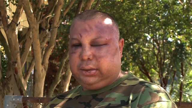 Jorge Gomez said he was questioned over his nationality and military service, then attacked outside a New Orleans bar. (Photo: WSDU via CNN)