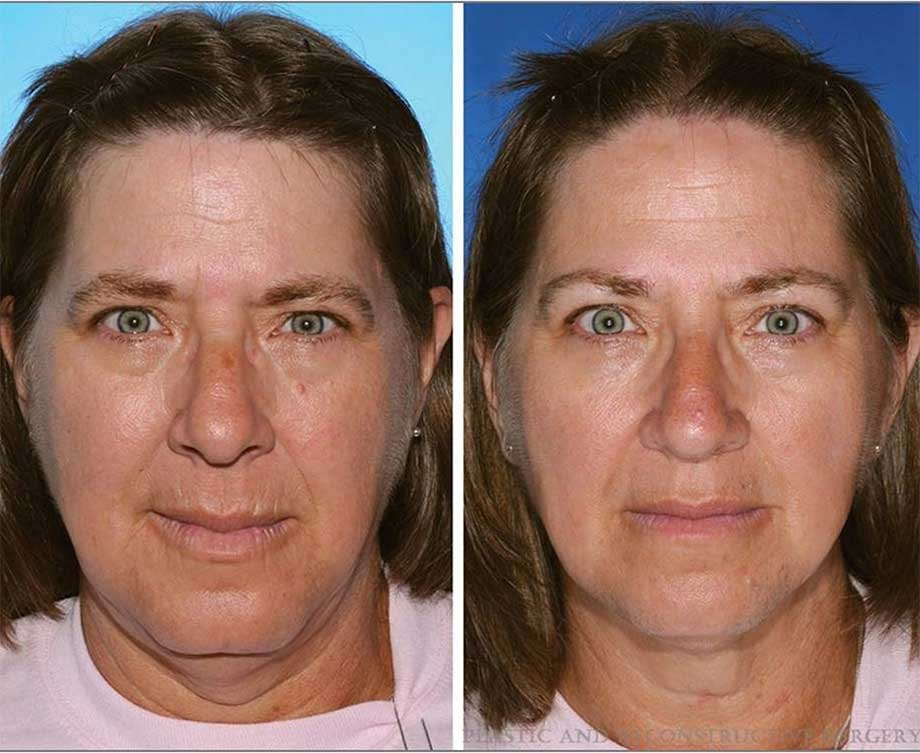 The twin on the left has smoked 17 years longer than the twin on the right. Note the differences in lower lid bags and upper and lower lip wrinkles.