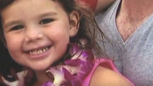 Finley Boyle, a 3-year-old Hawaii girl who suffered massive brain damage after undergoing a dental procedure last month, died Friday night, a hospice said Saturday. (CNN)