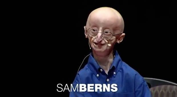 A Massachusetts boy with a rare genetic condition that accelerates the aging process and who became the subject of an HBO documentary has died. Sam Berns was 17. (Progeria Research Foundation/Facebook)